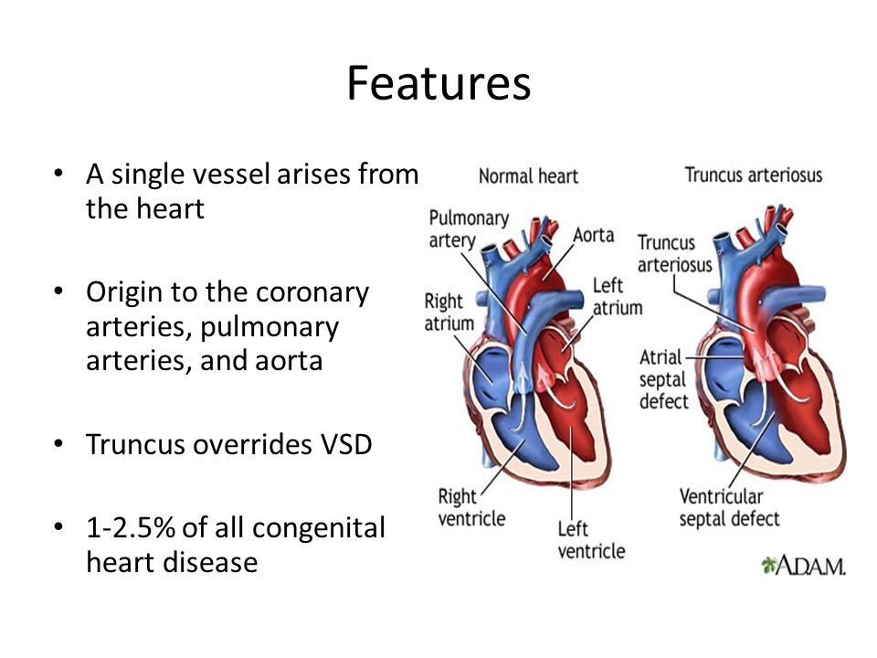 Features A single vessel arises from the heart Origin to the coronary arteries, pulmonary arteries, and aorta Truncus overrides VSD 1-2.5% of all cong