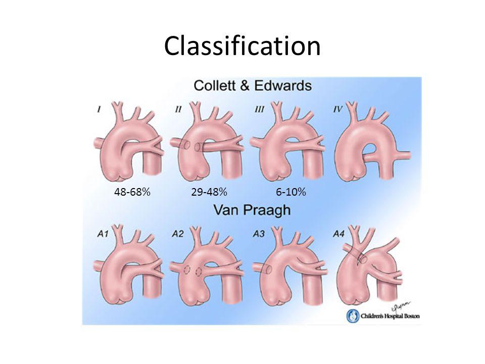 Classification 48-68%29-48%6-10%