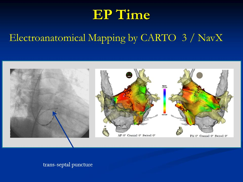 Electroanatomical Mapping by CARTO 3 / NavX EP Time trans-septal puncture