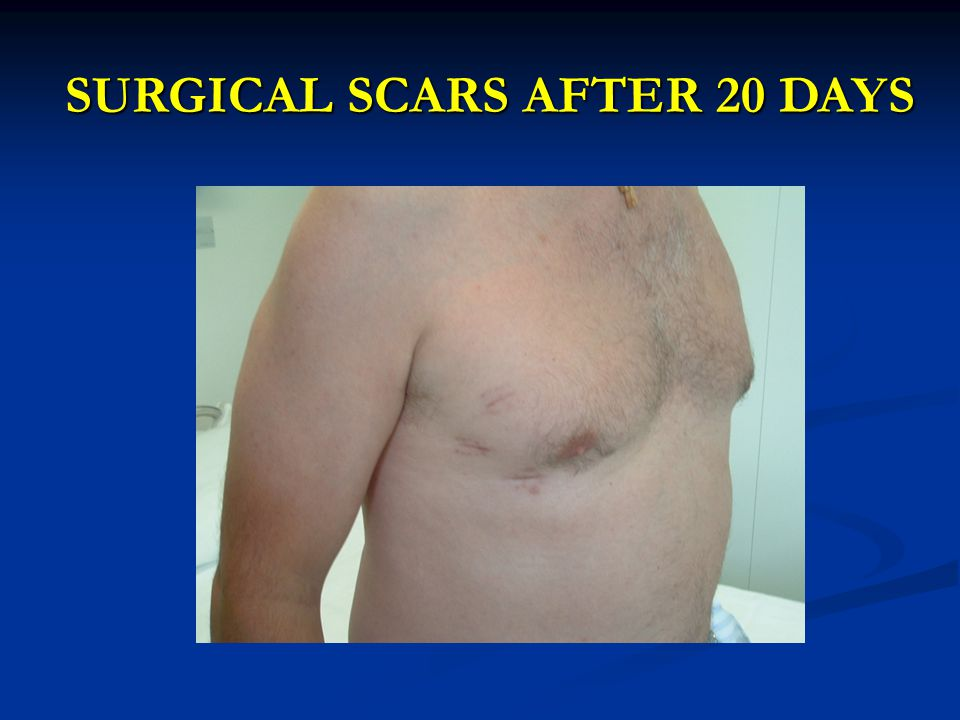 SURGICAL SCARS AFTER 20 DAYS
