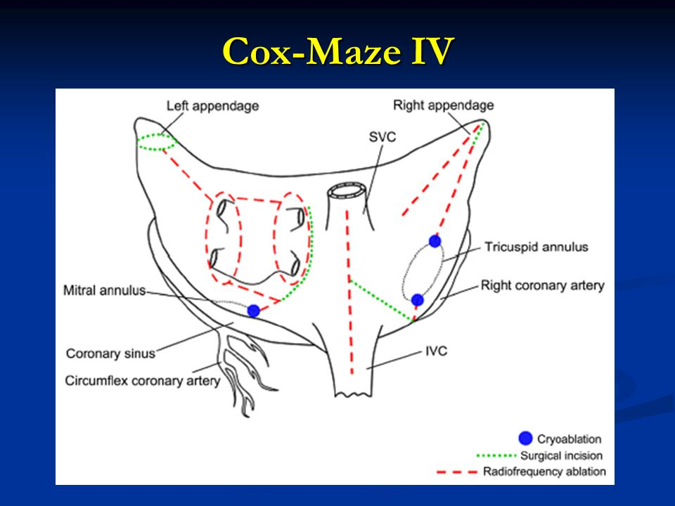 Cox-Maze IV