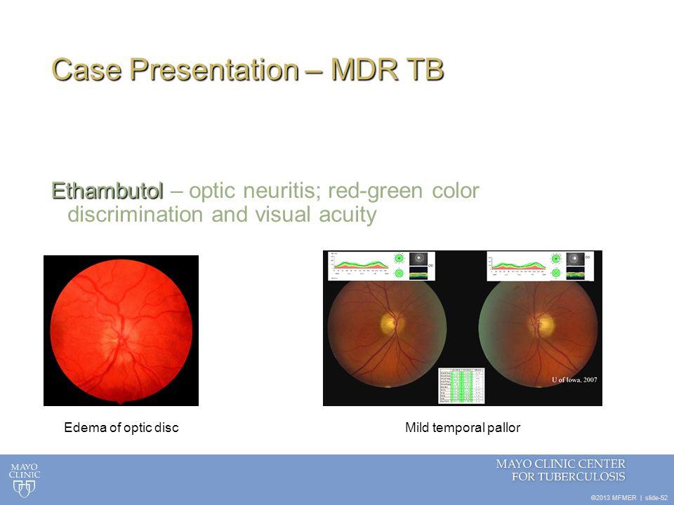 ©2013 MFMER   slide-52 Case Presentation – MDR TB Ethambutol Ethambutol – optic neuritis; red-green color discrimination and visual acuity Edema of op