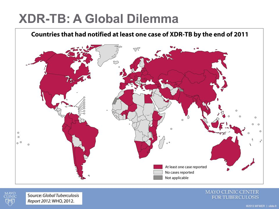 ©2013 MFMER   slide-9 XDR-TB: A Global Dilemma