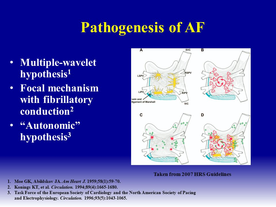 CS FO SVC IVC 17 31 6 RALA Focal Origin of AF 94% of atrial triggers in PVs (45 pts) The pulmonary veins are an important source of ectopic beats, initiating frequent paroxysms of AF These foci respond to treatment with RF ablation Hassaiguerre M, NEJM, 1998.