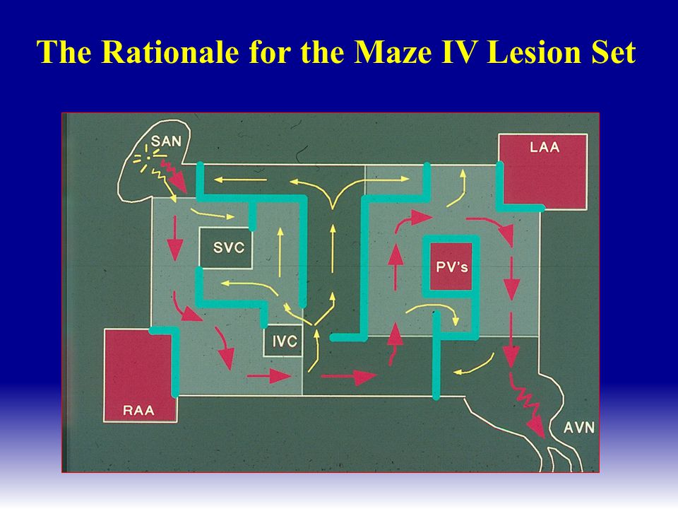 Left Atrial Lesions of the Cox-Maze IV