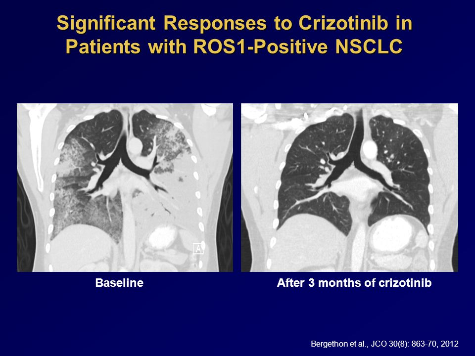 Significant Responses to Crizotinib in Patients with ROS1-Positive NSCLC BaselineAfter 3 months of crizotinib Bergethon et al., JCO 30(8): 863-70, 2012