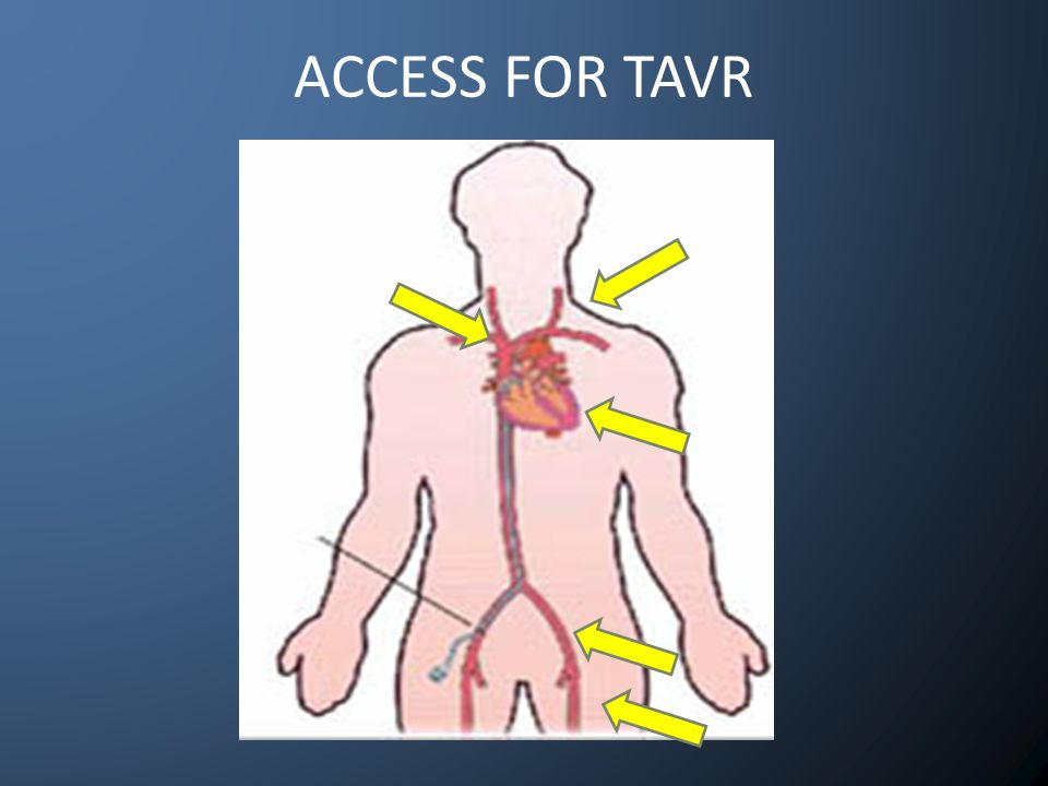 ACCESS FOR TAVR