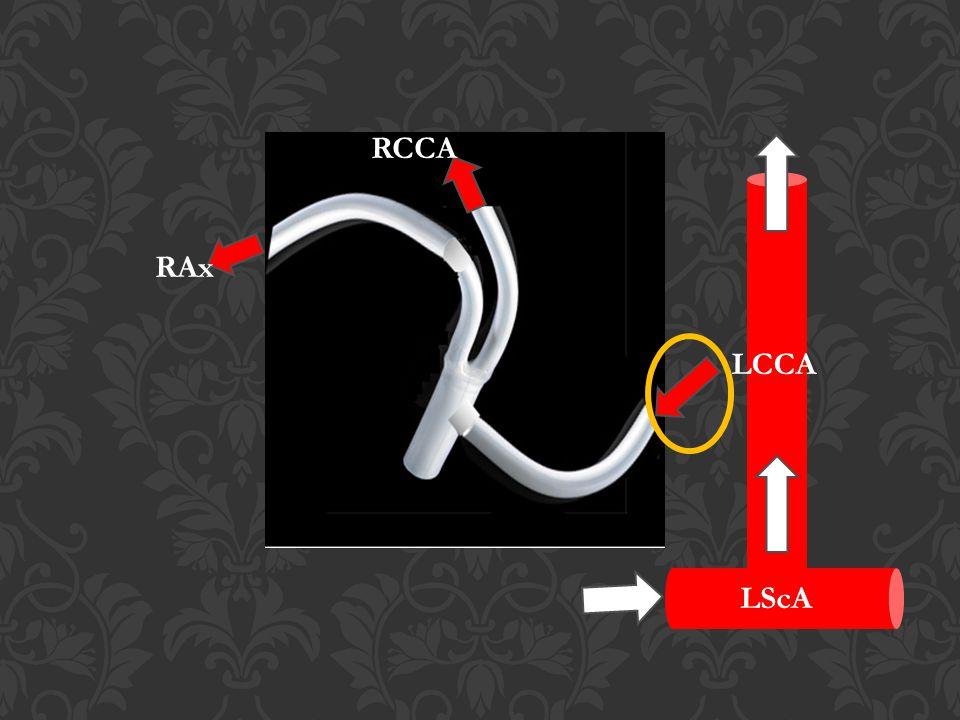 LCCA RCCA RAx LScA