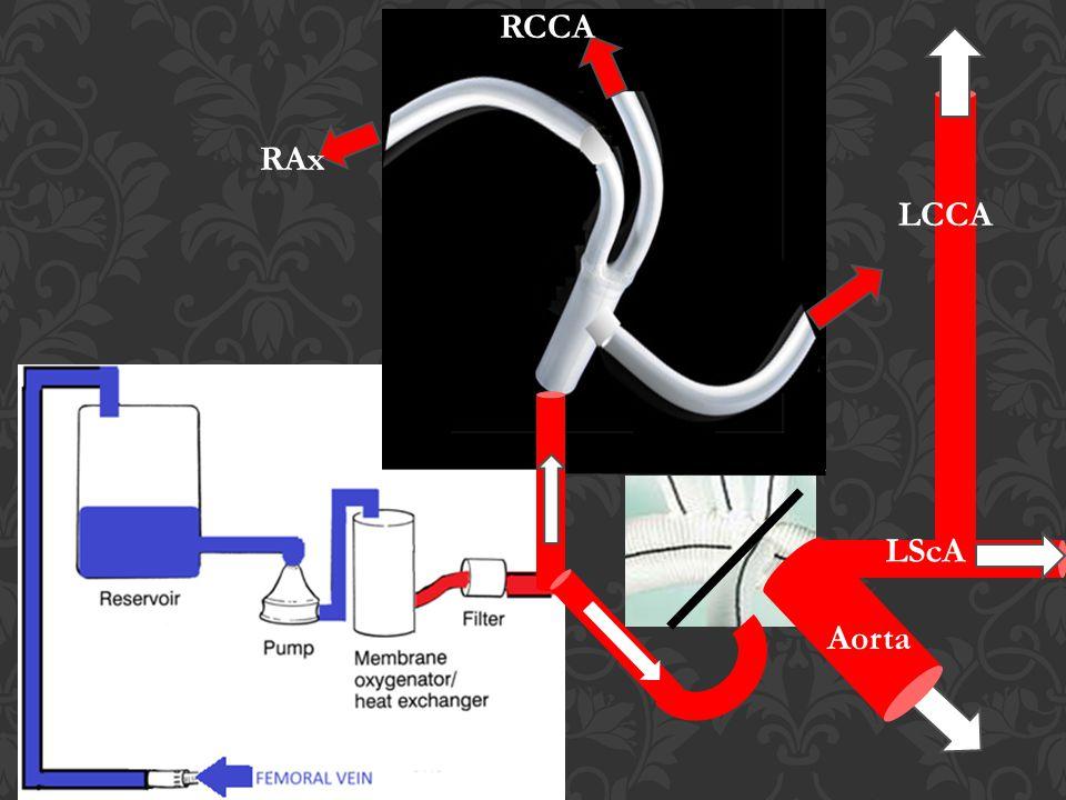 RCCA RAx LCCA LScA Aorta