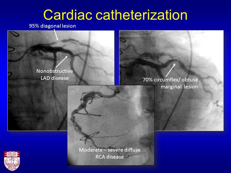 Cardiac catheterization 95% diagonal lesion Nonobstructive LAD disease 70% circumflex/ obtuse marginal lesion Moderate – severe diffuse RCA disease