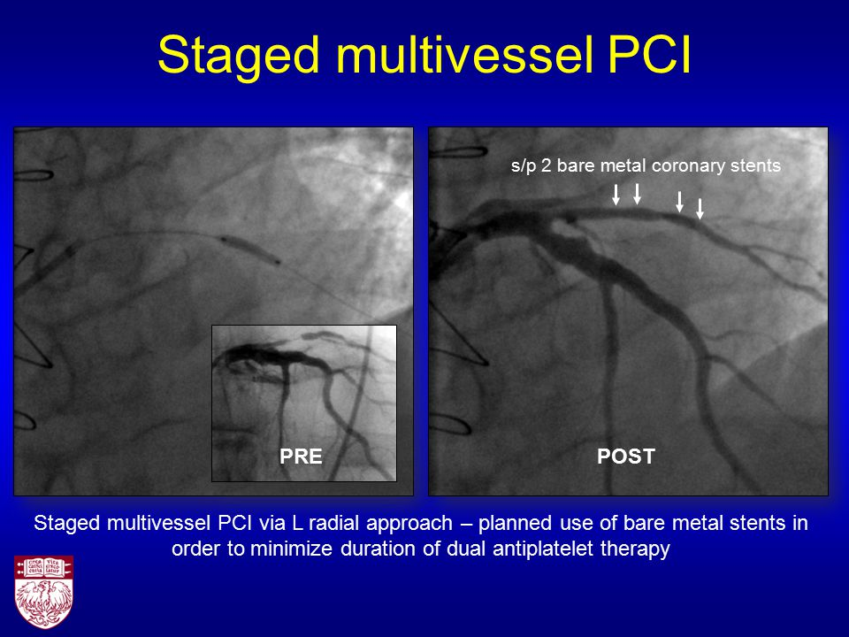Staged multivessel PCI Staged multivessel PCI via L radial approach – planned use of bare metal stents in order to minimize duration of dual antiplatelet therapy PREPOST s/p 2 bare metal coronary stents