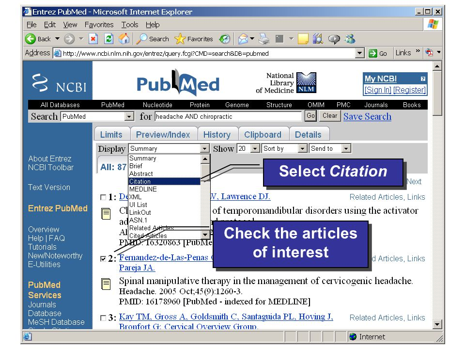© 2006 Evidence-based Chiropractic 49 Check the articles of interest Select Citation