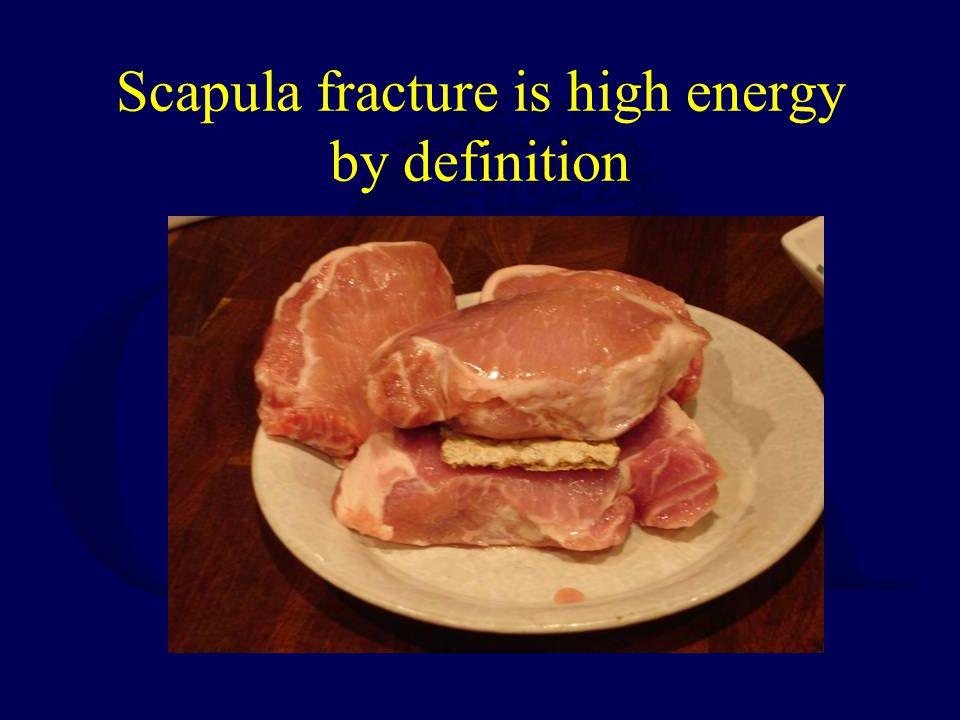 OTA 2009 Dimitroulias, et al –Scapula body fxs, cons.