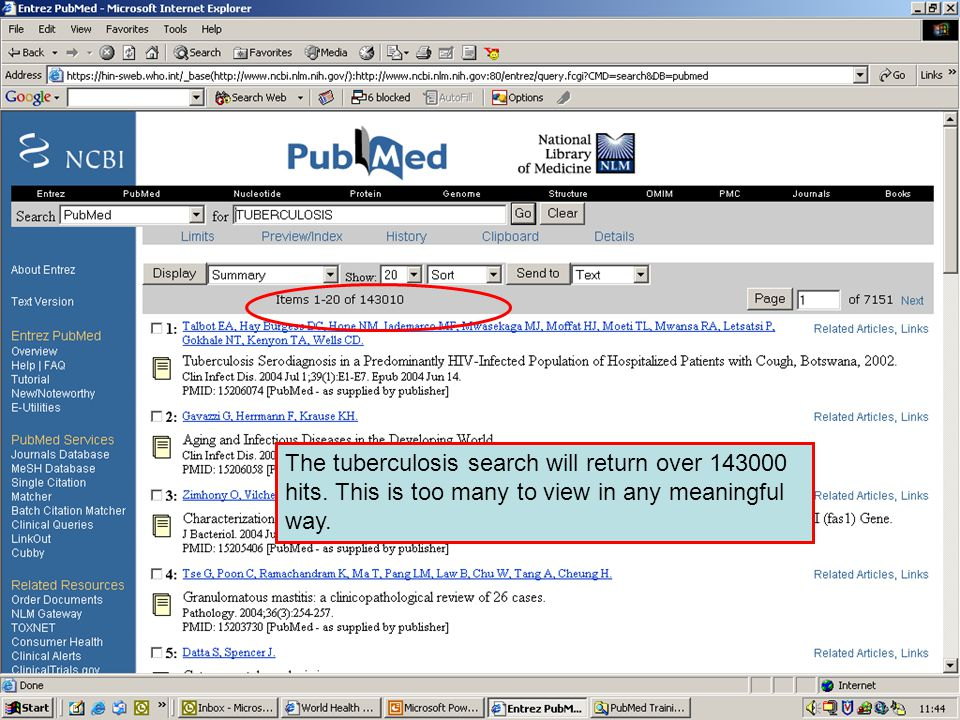 PubMed subsets 2 In this example we have the search term Tuberculosis limited to the AIDS subset.
