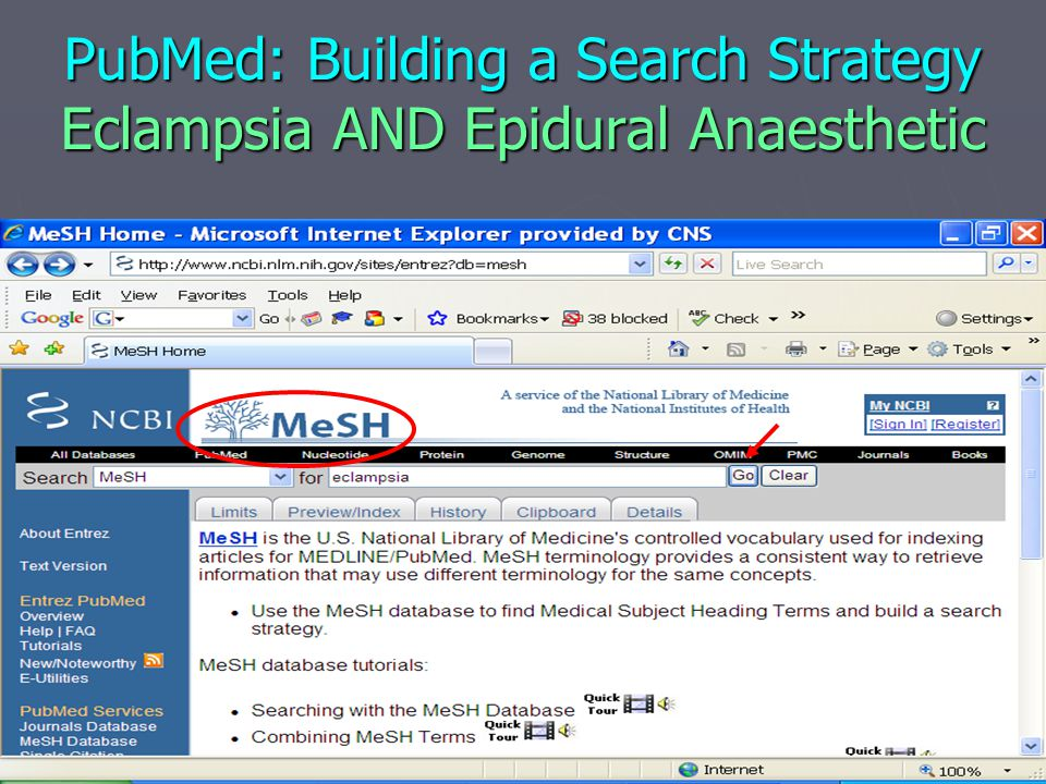 PubMed: Building a Search Strategy Eclampsia AND Epidural Anaesthetic