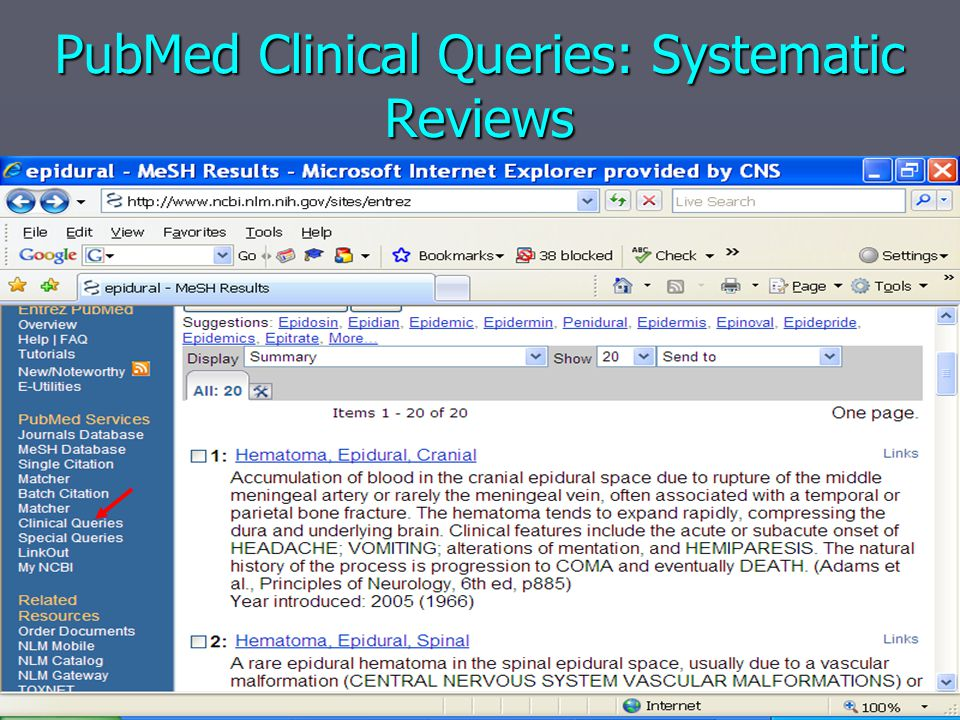 PubMed Clinical Queries: Systematic Reviews