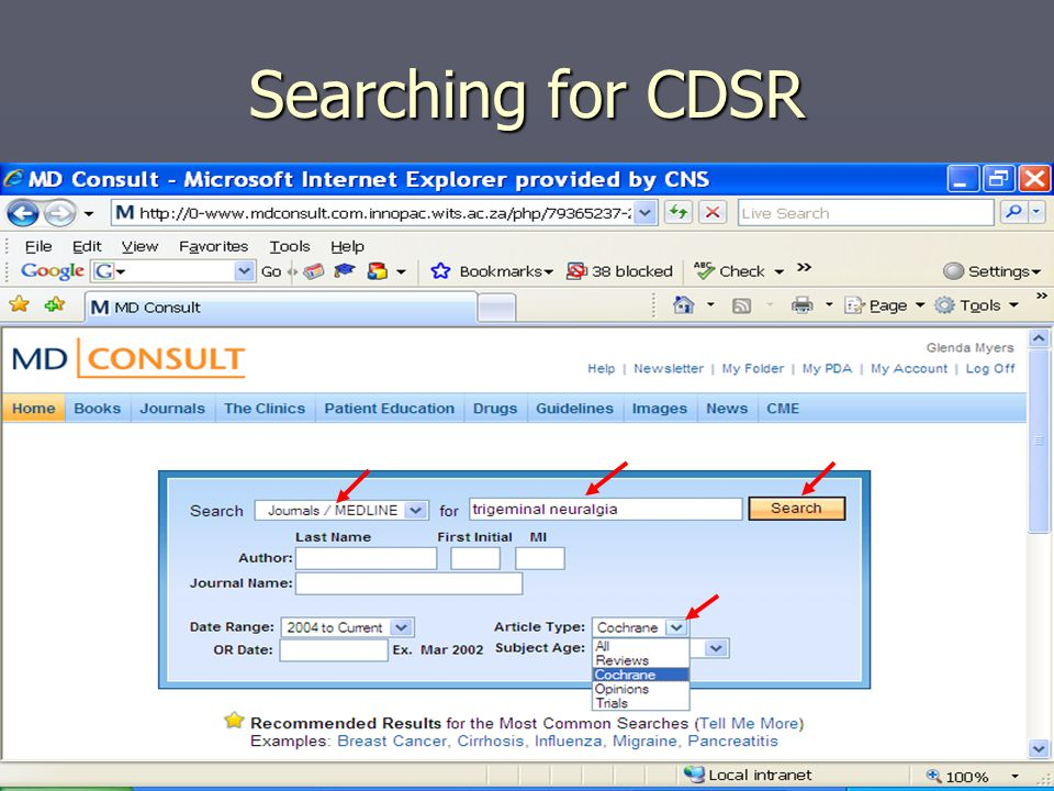 Searching for CDSR