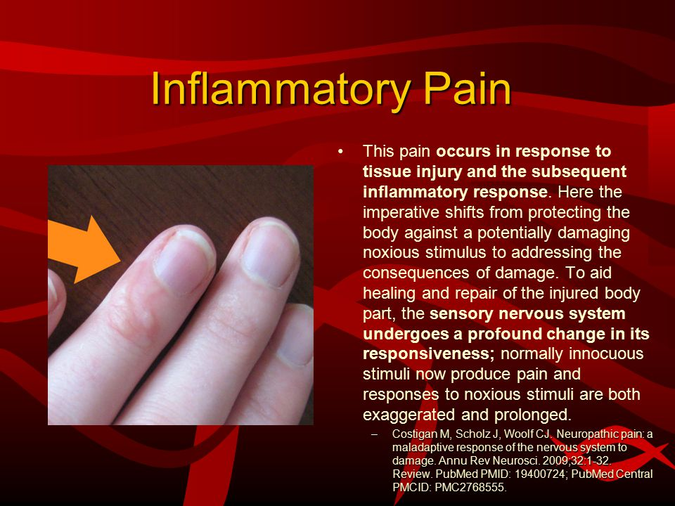 Inflammatory Pain This pain occurs in response to tissue injury and the subsequent inflammatory response.