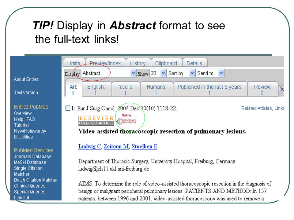 TIP! Display in Abstract format to see the full-text links!