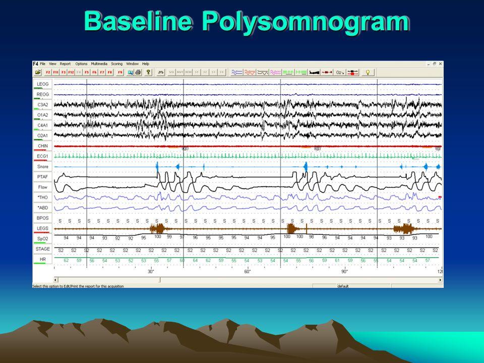 Baseline Polysomnogram