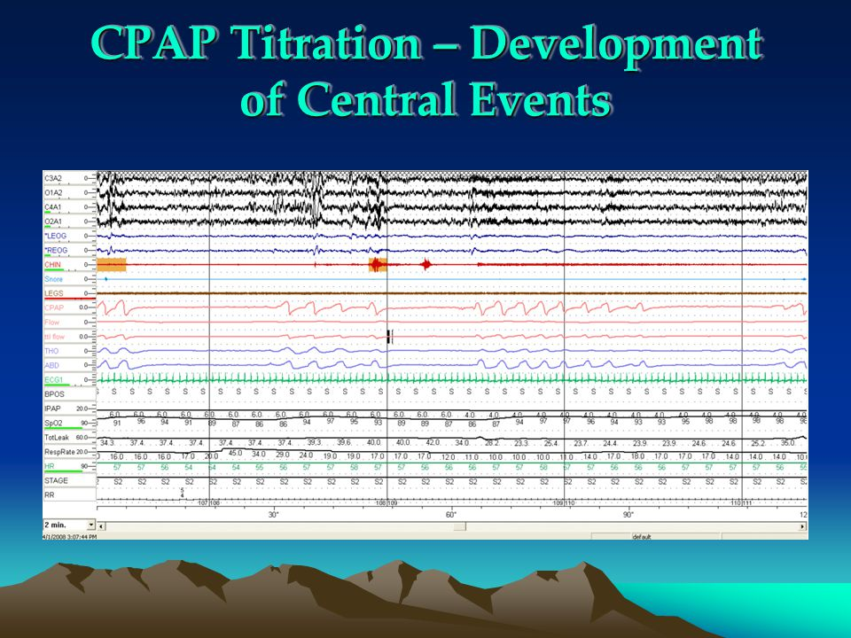 CPAP Titration – Development of Central Events