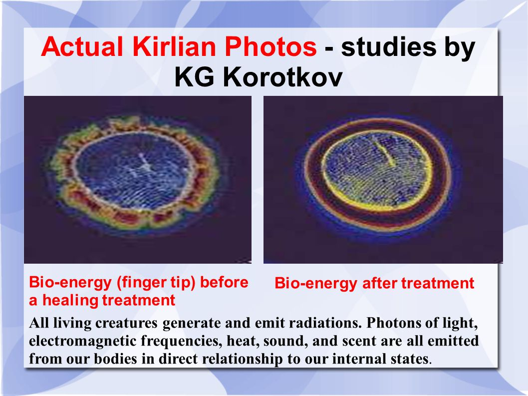Actual Kirlian Photos - studies by KG Korotkov Bio-energy (finger tip) before a healing treatment Bio-energy after treatment All living creatures generate and emit radiations.
