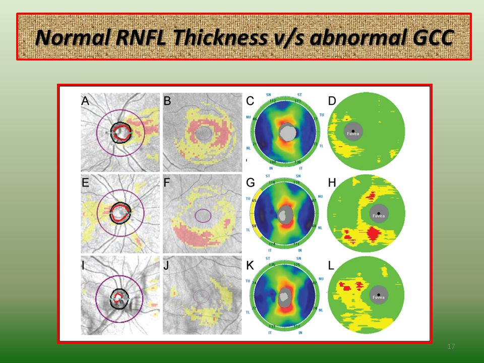 Normal RNFL Thickness v/s abnormal GCC 17