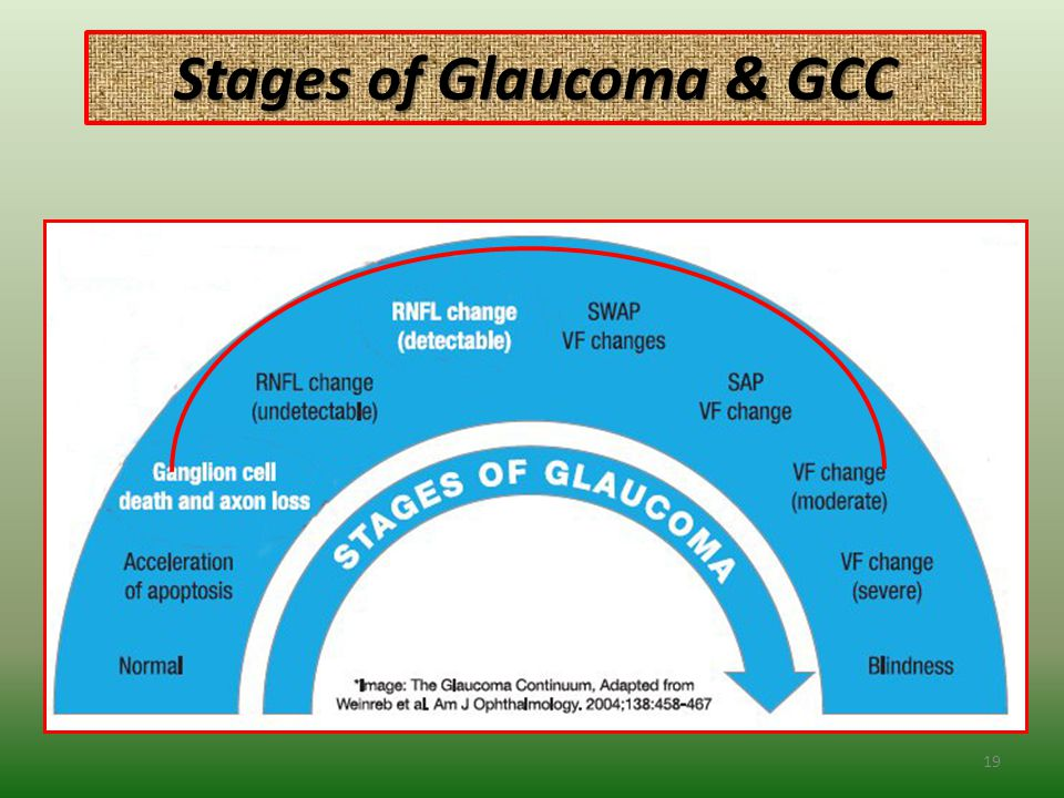 Stages of Glaucoma & GCC 19