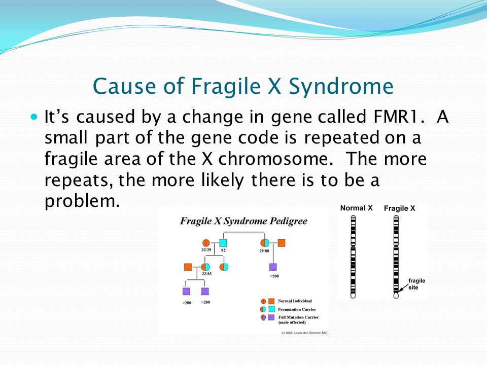 Target Population for Fragile X Syndrome Fragile X can affect 1 in 4000 males and 1 in 8000, but is more common in males.