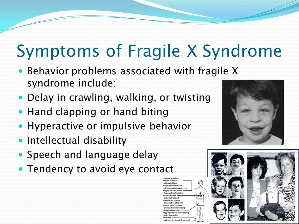 Prognosis of Fragile X Syndrome Prognosis is how well the patient does depending on the amount of intellectual disability (mental retardation).