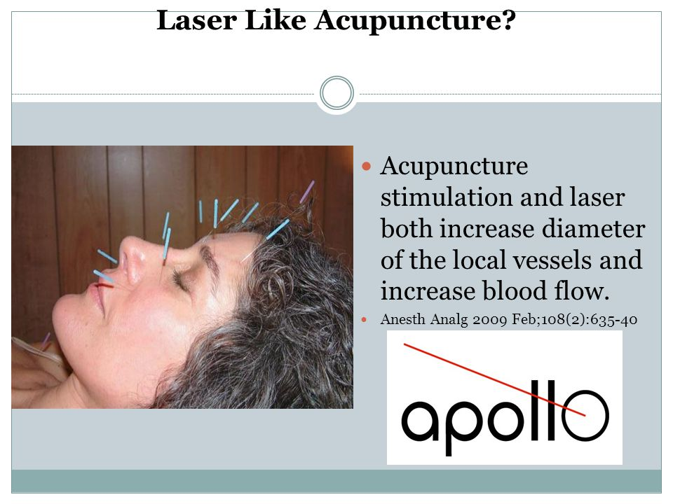 Laser Like Acupuncture? Acupuncture stimulation and laser both increase diameter of the local vessels and increase blood flow. Anesth Analg 2009 Feb;1
