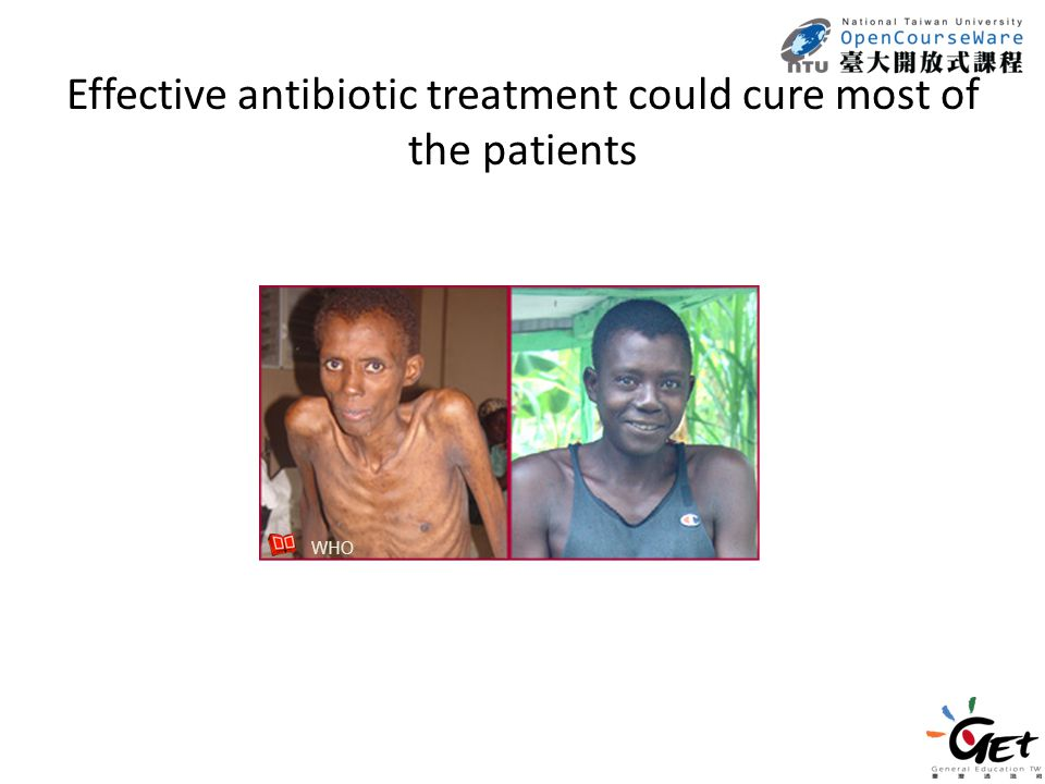 Effective antibiotic treatment could cure most of the patients WHO