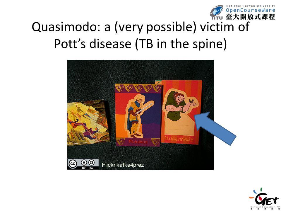 Quasimodo: a (very possible) victim of Pott's disease (TB in the spine) Flickr kafka4prez