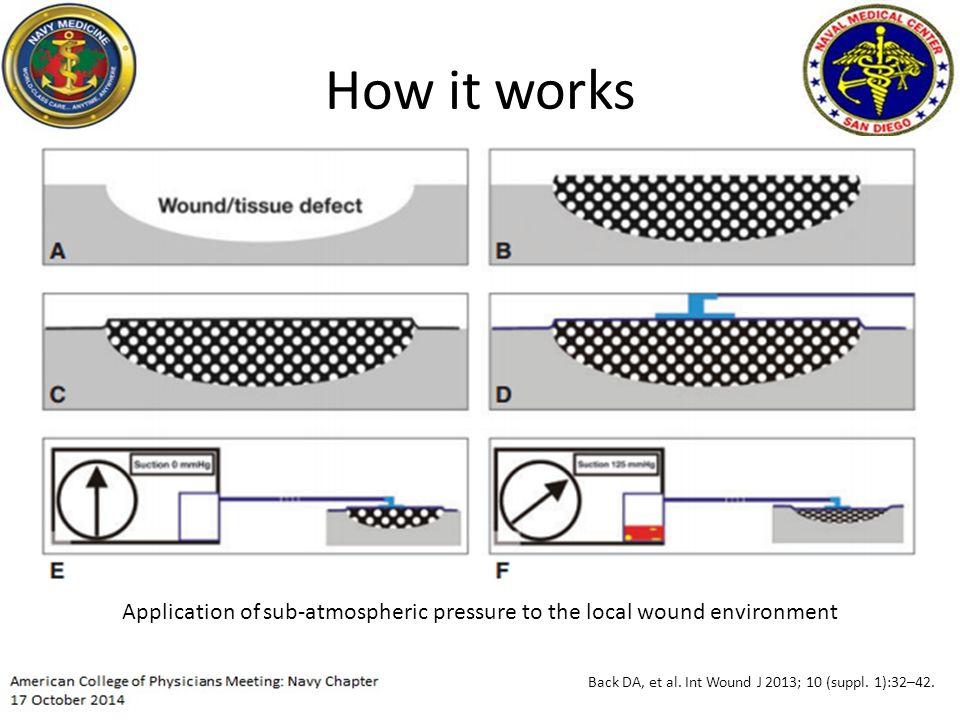 How it works Back DA, et al. Int Wound J 2013; 10 (suppl.
