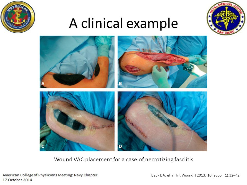 A clinical example Wound VAC placement for a case of necrotizing fasciitis Back DA, et al.