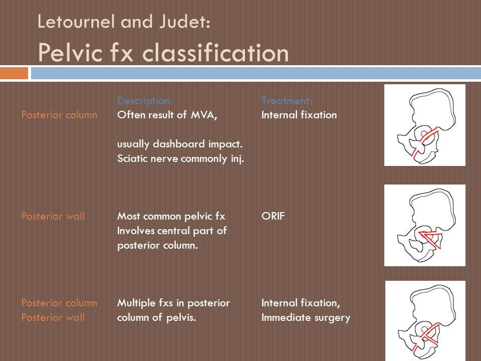 Letournel and Judet: Pelvic fx classification Description:Treatment: Posterior column Often result of MVA,Internal fixation usually dashboard impact.