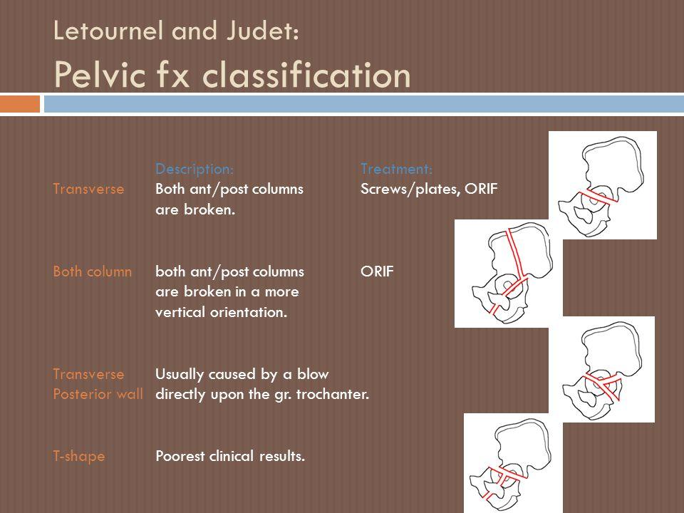 Letournel and Judet: Pelvic fx classification Description: Treatment: TransverseBoth ant/post columnsScrews/plates, ORIF are broken. Both columnboth a