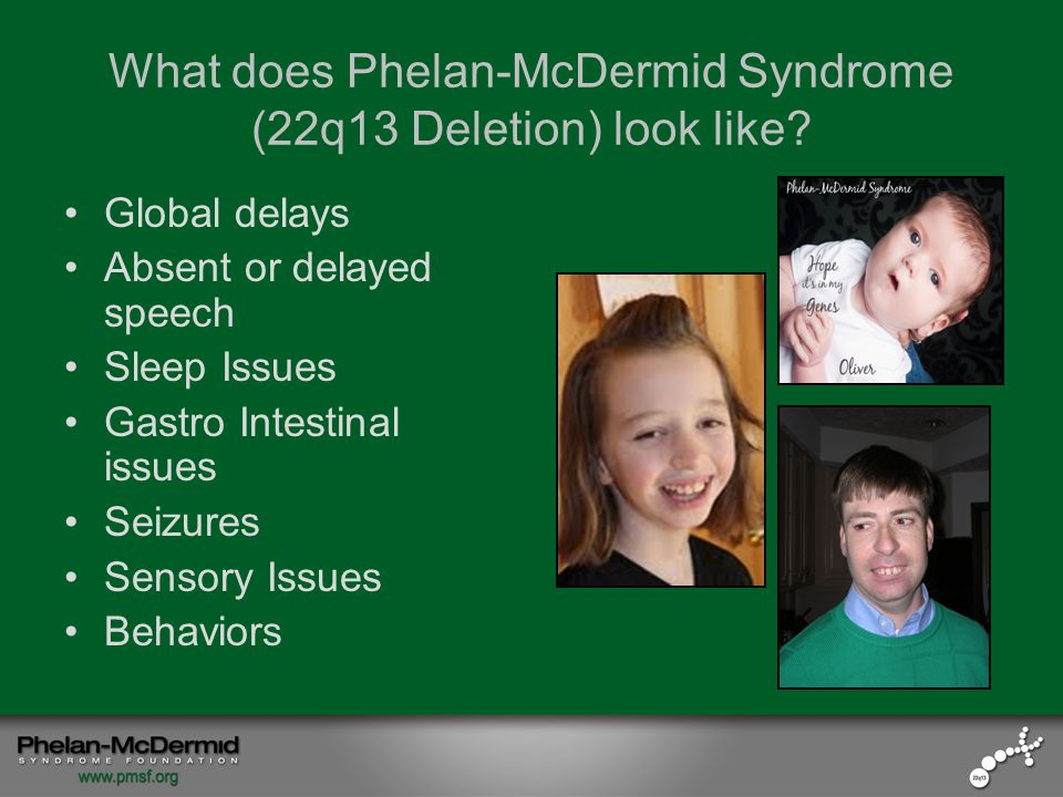 What does Phelan-McDermid Syndrome (22q13 Deletion) look like.