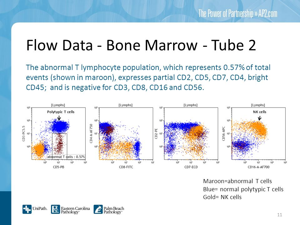 Flow Data - Bone Marrow - Tube 2 The abnormal T lymphocyte population, which represents 0.57% of total events (shown in maroon), expresses partial CD2, CD5, CD7, CD4, bright CD45; and is negative for CD3, CD8, CD16 and CD56.