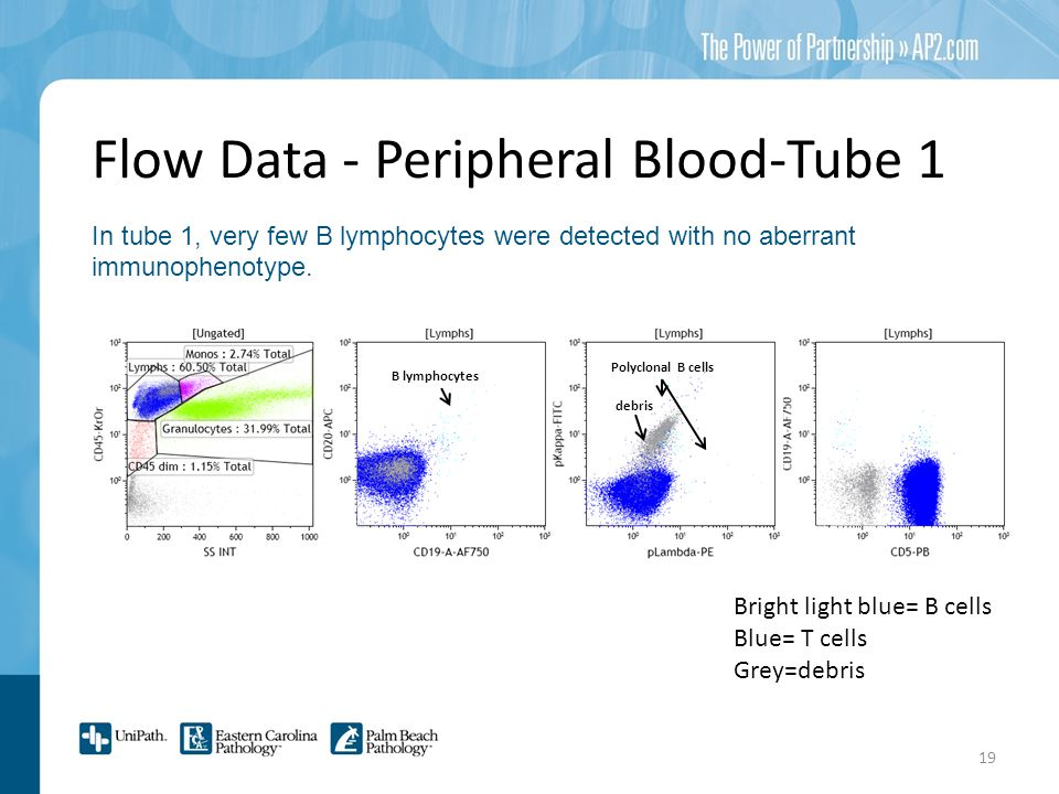 Flow Data - Peripheral Blood-Tube 1 In tube 1, very few B lymphocytes were detected with no aberrant immunophenotype.