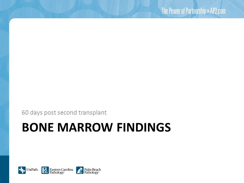 BONE MARROW FINDINGS 60 days post second transplant