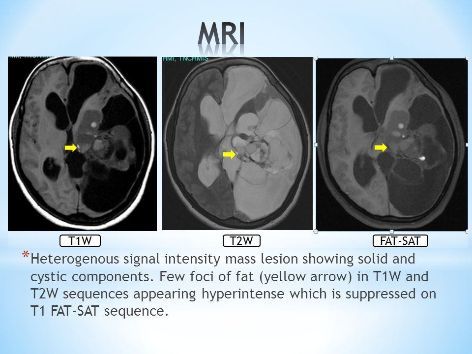 * Heterogenous signal intensity mass lesion showing solid and cystic components. Few foci of fat (yellow arrow) in T1W and T2W sequences appearing hyp