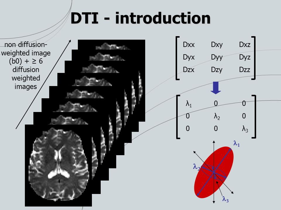 DTI - introduction non diffusion- weighted image (b0) + ≥ 6 diffusion weighted images DxxDxyDxz DyxDyyDyz DzxDzyDzz λ 1 0 0 0 λ 2 0 0 0 λ 3   