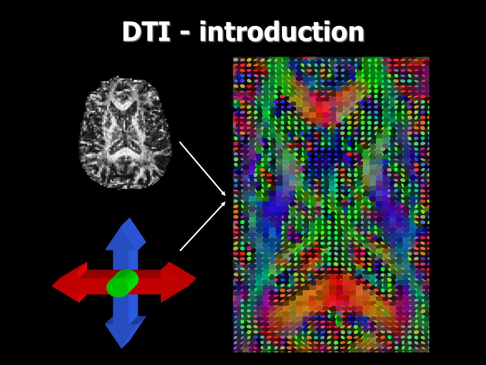 DTI - introduction