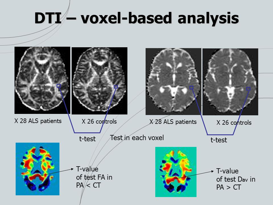 DTI – voxel-based analysis t-test X 28 ALS patients X 26 controls X 28 ALS patients X 26 controls Test in each voxel T-value of test FA in PA < CT T-value of test D av in PA > CT