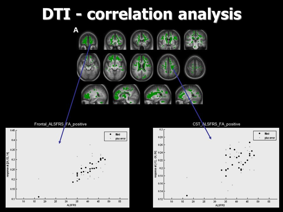 A DTI - correlation analysis CST_ALSFRS_FA_positive Frontal_ALSFRS_FA_positive