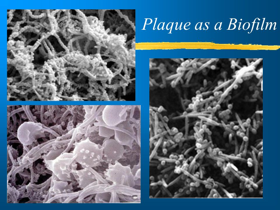 Plaque as a Biofilm