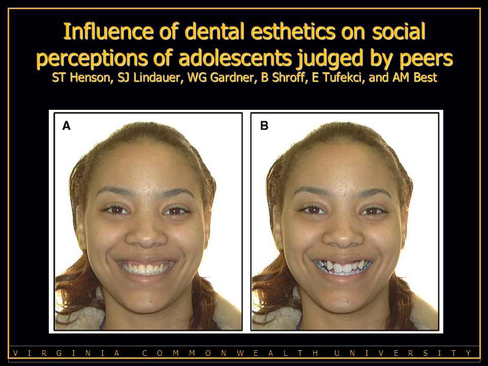 V I R G I N I A C O M M O N W E A L T H U N I V E R S I T Y Influence of dental esthetics on social perceptions of adolescents judged by peers ST Henson, SJ Lindauer, WG Gardner, B Shroff, E Tufekci, and AM Best