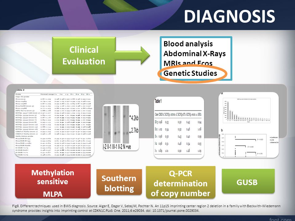 DIAGNOSIS Blood analysis Abdominal X-Rays MRIs and Ecos Genetic Studies Clinical Evaluation Methylation sensitive MLPA Southern blotting Q-PCR determination of copy number GUSB Fig8.