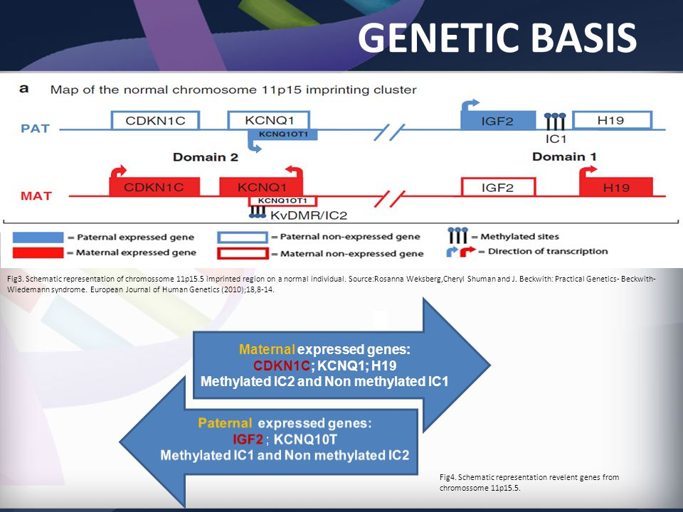 GENETIC BASIS Maternal expressed genes: CDKN1C; KCNQ1; H19 Methylated IC2 and Non methylated IC1 Fig3.